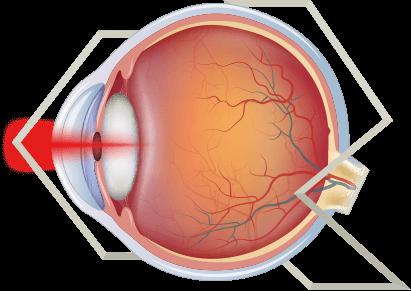 Imagem Capsulotomia