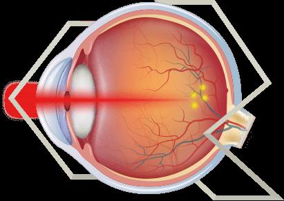 Imagem Fotocoagulação a Laser