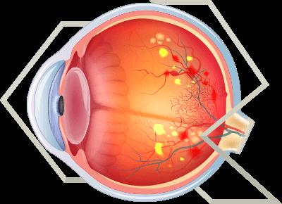 clinica-raskin-doenças-imagem